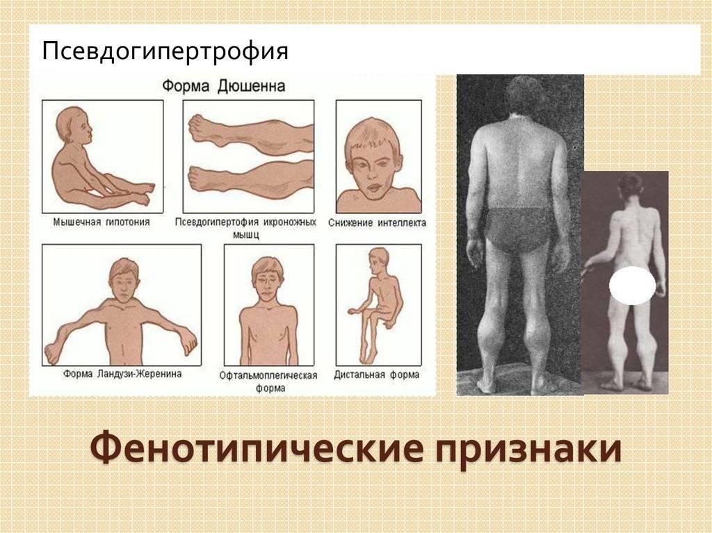 Миопатия дюшенна: причины болезни и симптомы синдрома миодистрофии, лечение и продолжительность жизни