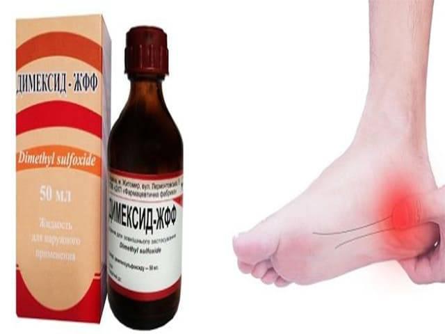 Пяточная шпора симптомы и лечение в домашних условиях димексидом
