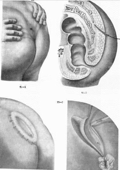 Воспаление копчика из-за кисты: описание патологии, симптомы, операция и реабилитационный период