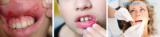 Герпетический стоматит у взрослых и детей