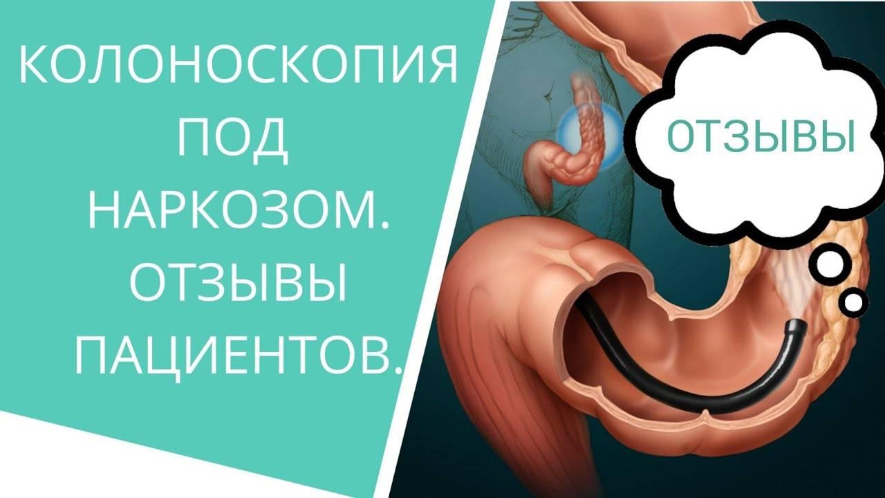 Колоноскопия кишечника под наркозом в  юнион клиник, спб