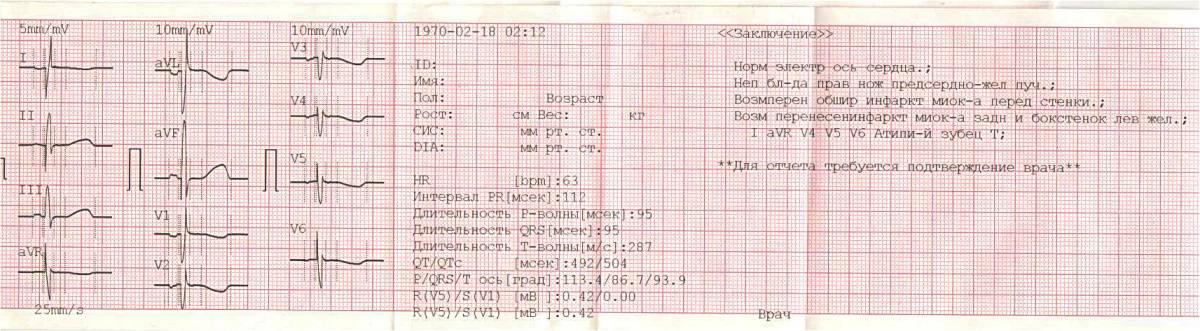 Расшифровка экг у взрослых: норма кардиограммы сердца, таблица показателей, фото