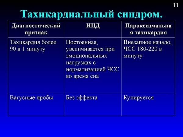 Нейроциркуляторная дистония