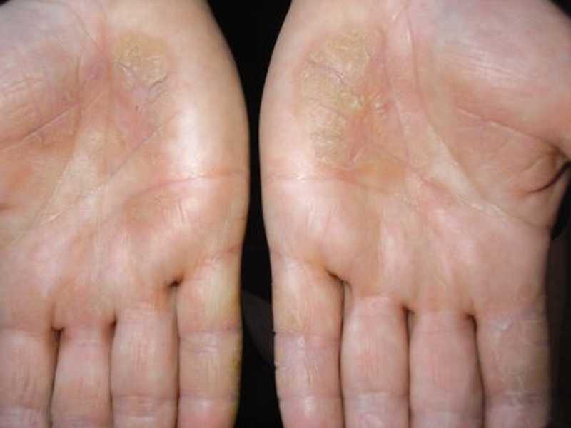 Мази для лечения экземы на ногах
