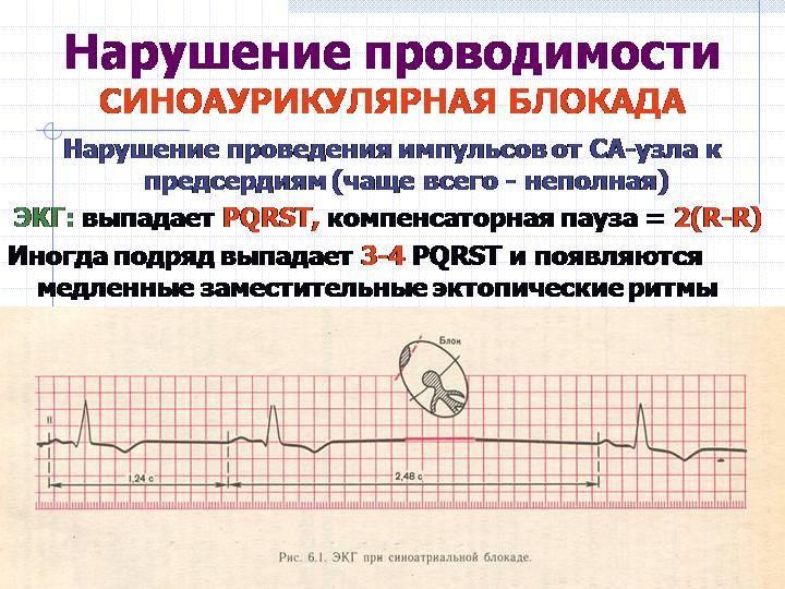 Нарушение внутрипредсердной проводимости причина и лечение - здоров.сердцем