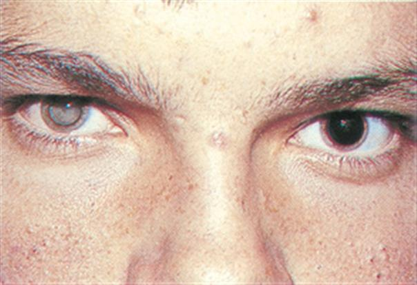 Токсокароз у взрослого человека фото