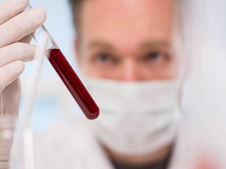Анализ крови на антитела к лямблиям