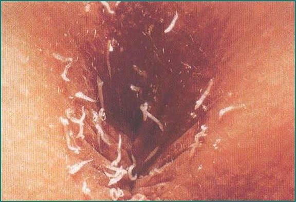 Глисты энтеробиоз