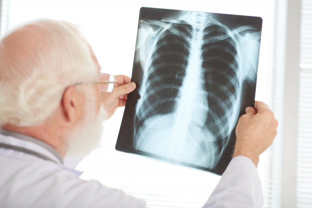 Рентген диагностика аскаридоза