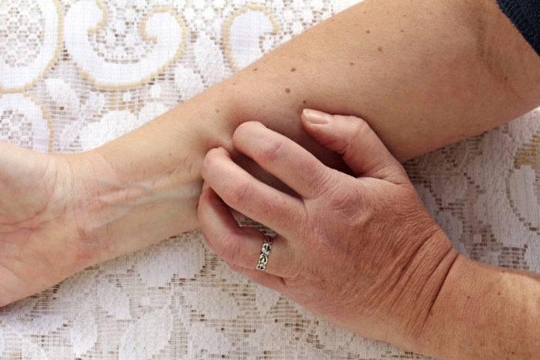 Симптомы описторхоза у взрослых