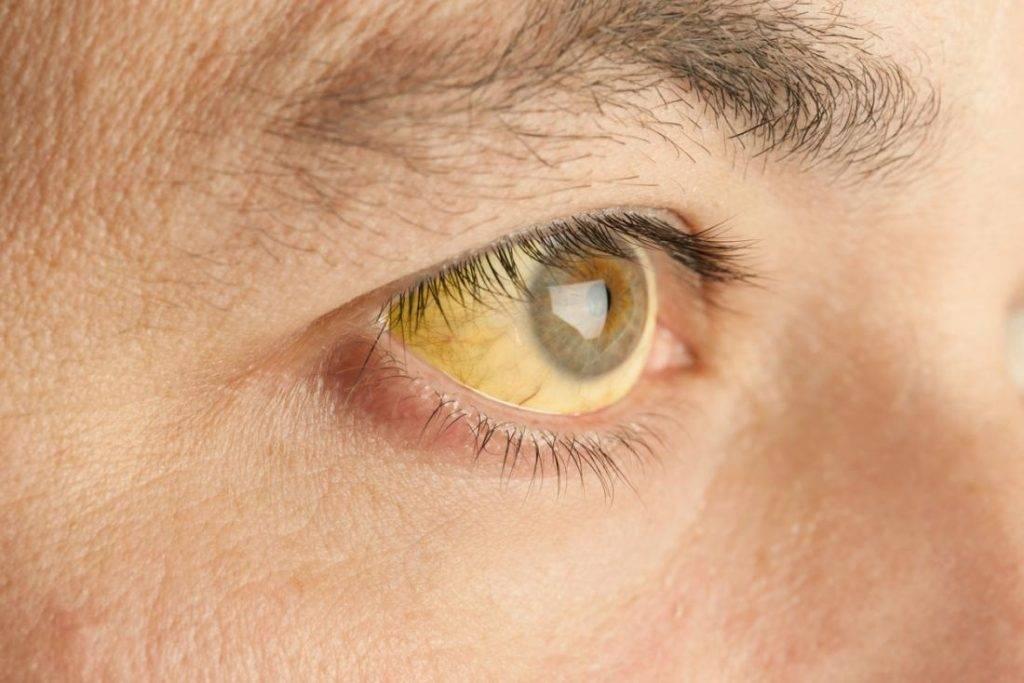 Описторхоз у взрослых: симптомы и признаки
