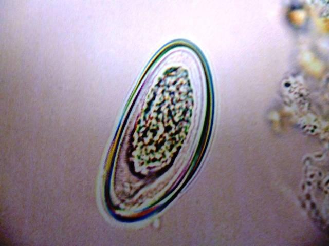Яйца остриц под микроскопом фото