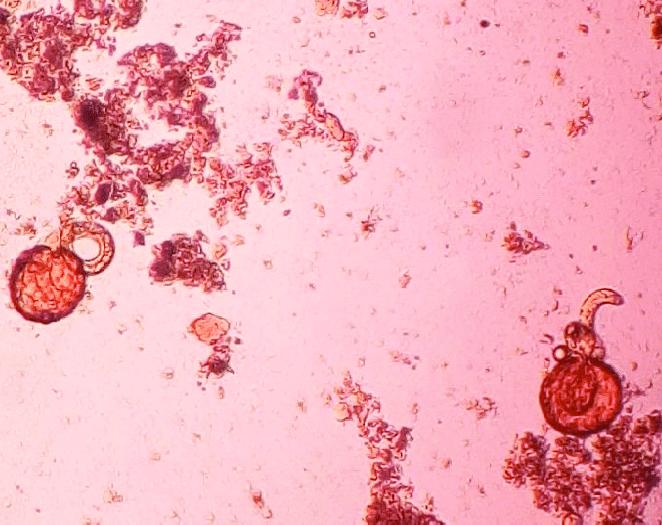 Личинка в яйце аскариды развивается
