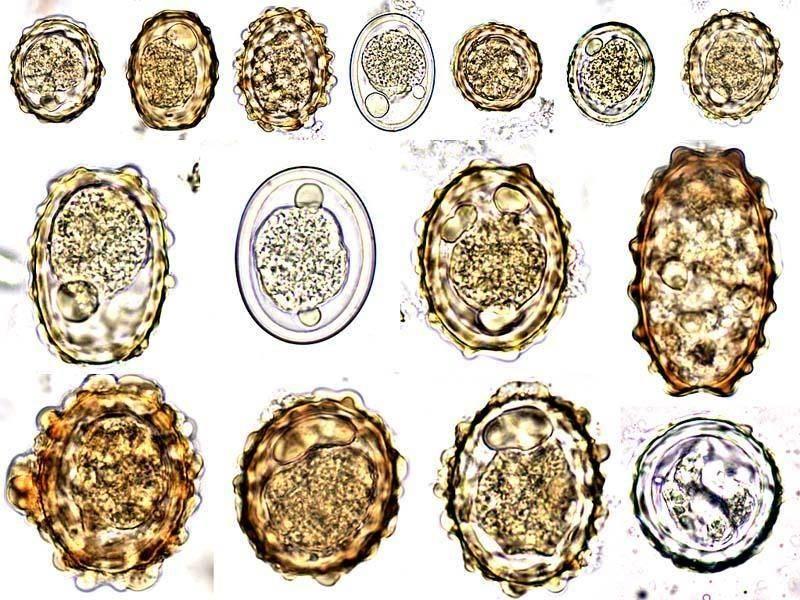 Стадии развития аскариды начиная с яйца
