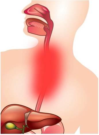 Рефлюкс-эзофагит: симптомы, причины и лечение