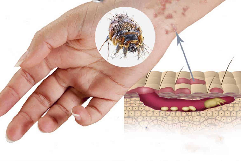 Чесоточный клещ у человека: симптомы и лечение от паразита