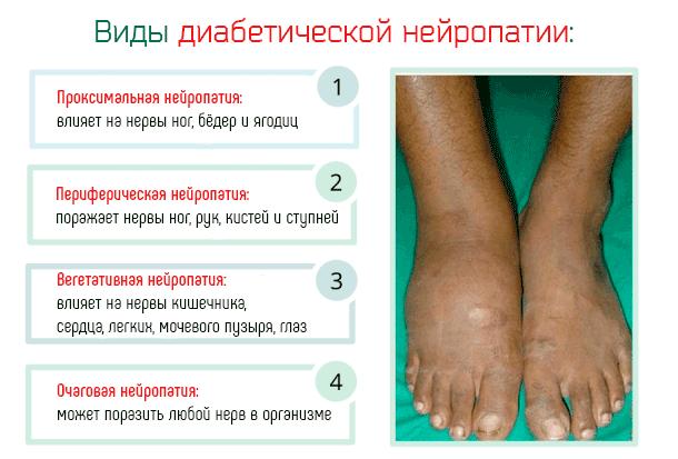Токсическая полинейропатия нижних конечностей: причины, симптомы и лечение. токсическая полинейропатия после химиотерапии