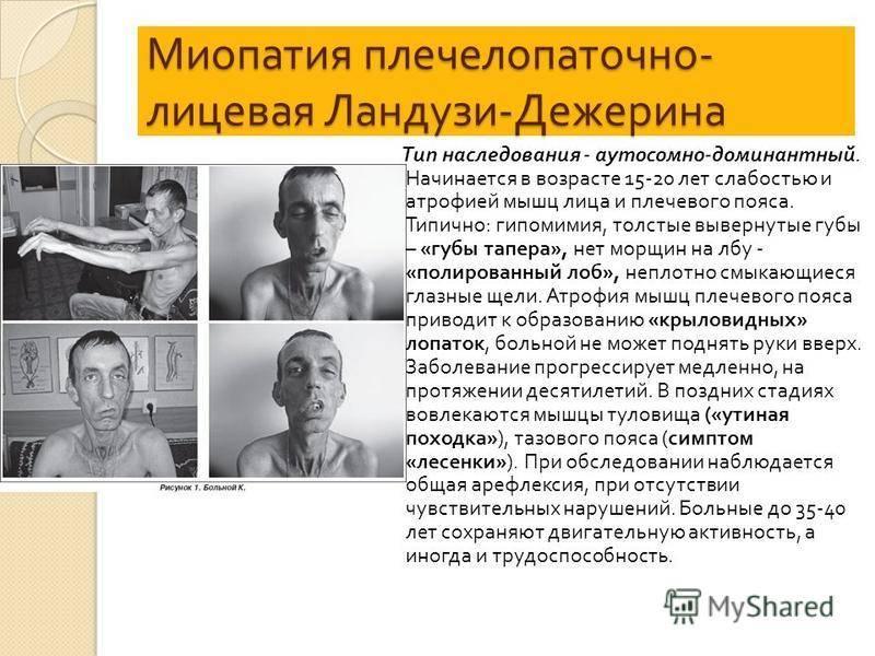 Симптомы и лечение миопатии дюшенна