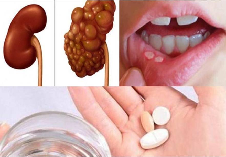 Горечь во рту - причины появления после еды, приема антибиотиков, во время беременности и лечение