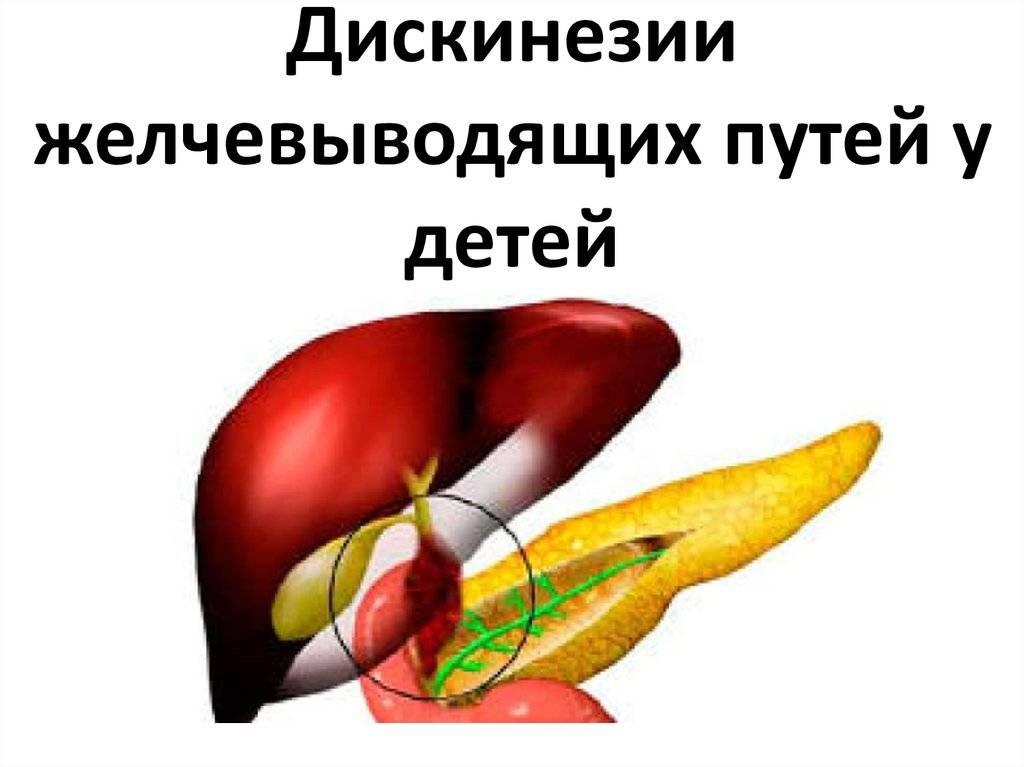 Диета при дисканезии желчевыводящих путей