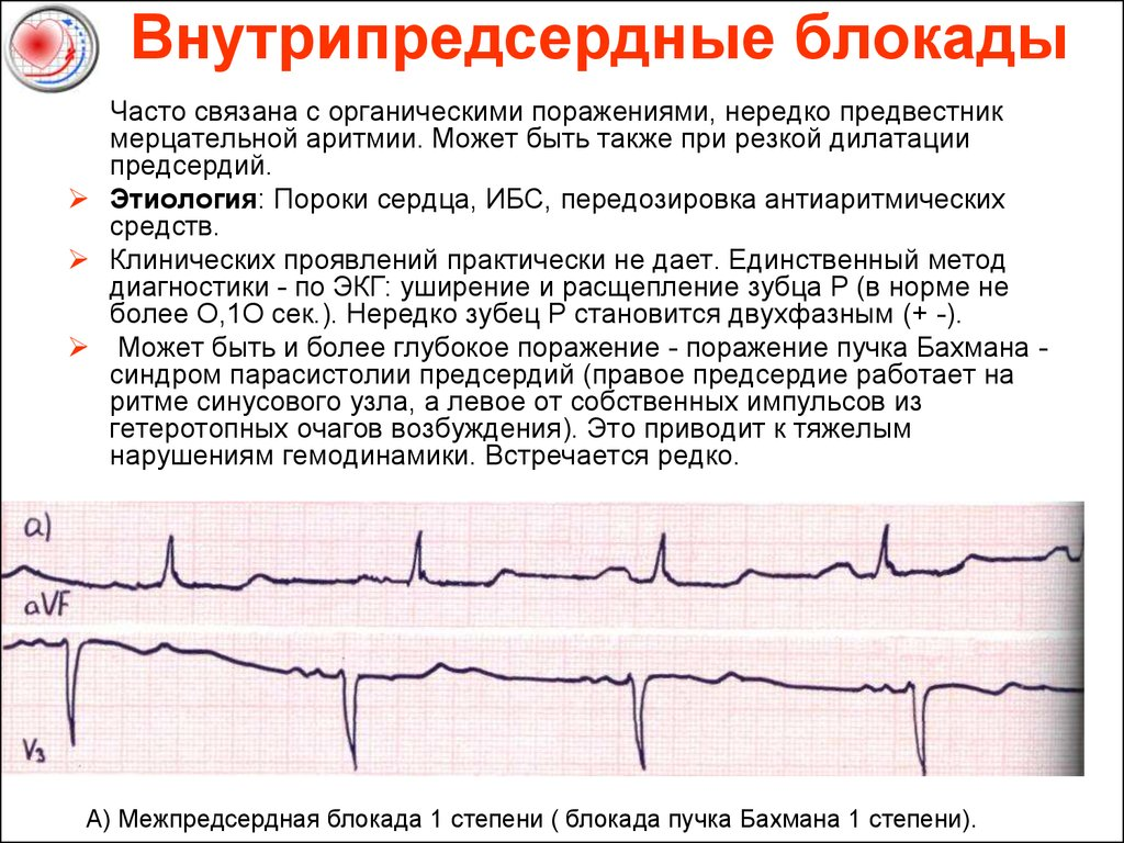 Замедление внутрипредсердной проводимости: что это такое, причины и лечение