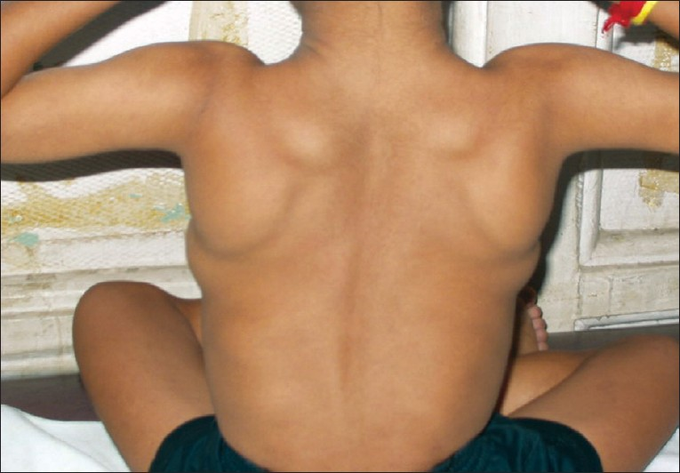 Спинальная мышечная атрофия (сма): что это такое? — про паллиатив