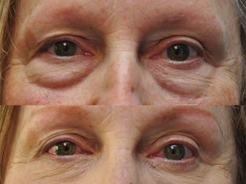 По утрам отекают веки над глазами: причины и лечение oculistic.ru по утрам отекают веки над глазами: причины и лечение