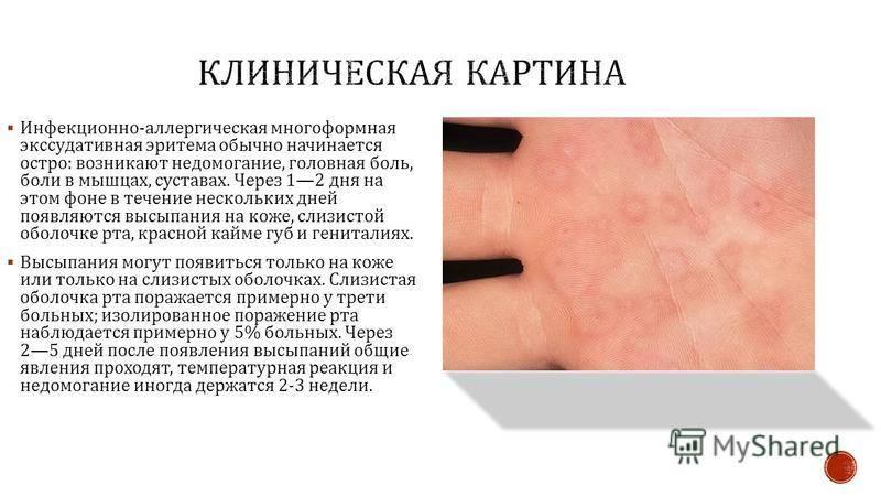 Многоформная экссудативная эритема: что это такое, симптомы, причины и лечение | fr-dc.ru
