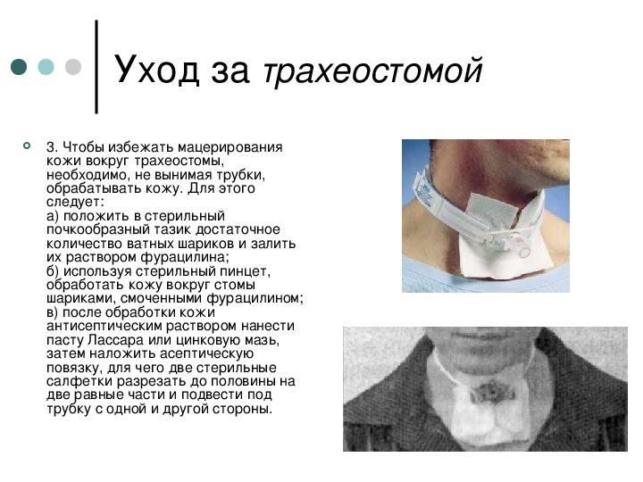 Техника выполнения трахеостомии (стандартной методики)