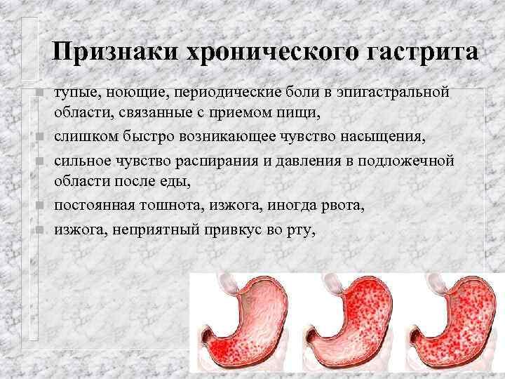 Приступ гастрита: симптомы и лечение в домашних условиях