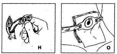 Уход за интубационной трубкой и трахеостомой - умный доктор