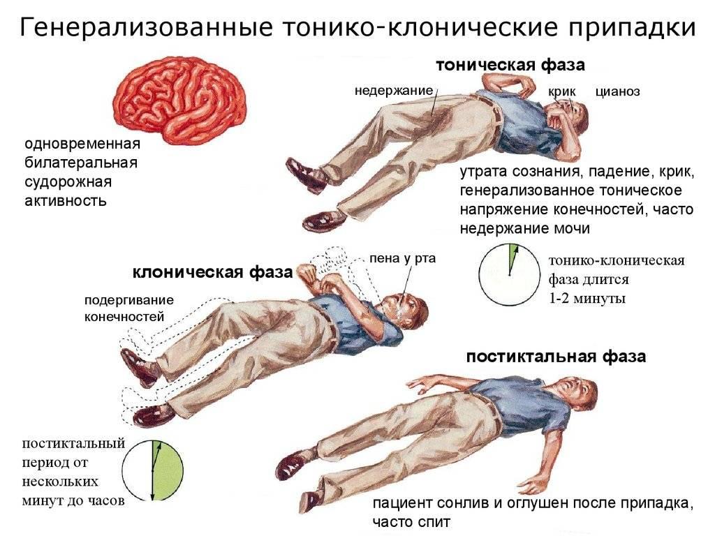 Доброкачественная эпилепсия детского возраста (роландическая эпилепсия)