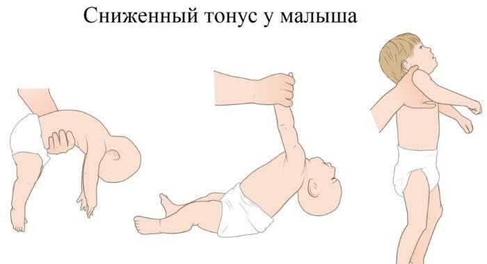 Мышечный скелет. о нарушениях мышечного тонуса у грудничков и их корректировке. повышенный тонус мышц у грудничка
