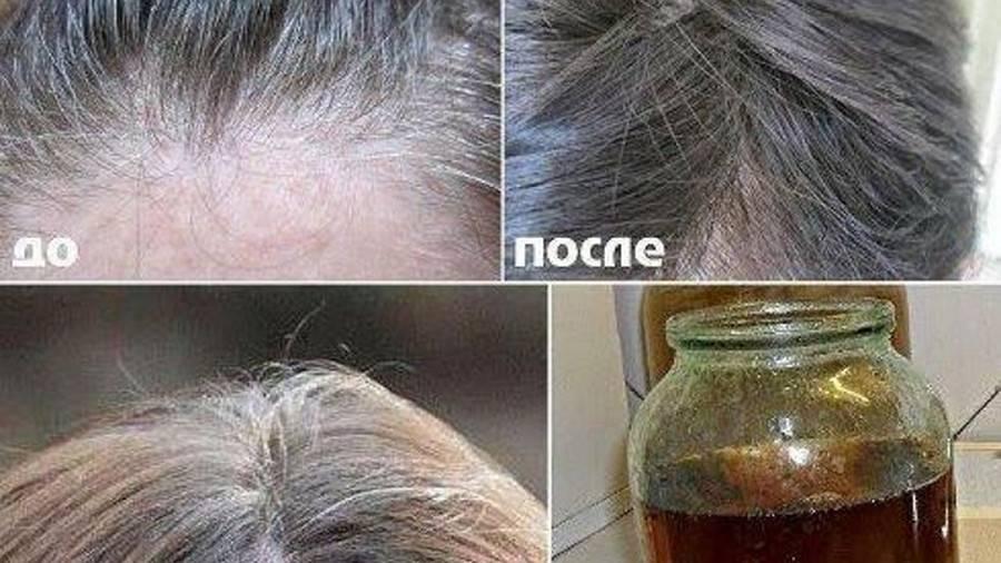 Что делать с сединой на темных волосах: советы и идеи как скрыть