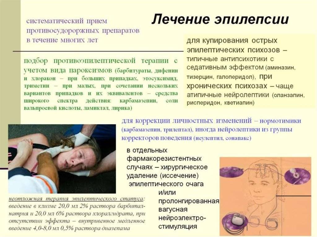 Эпилепсия у детей: особенности, причины и методы лечения