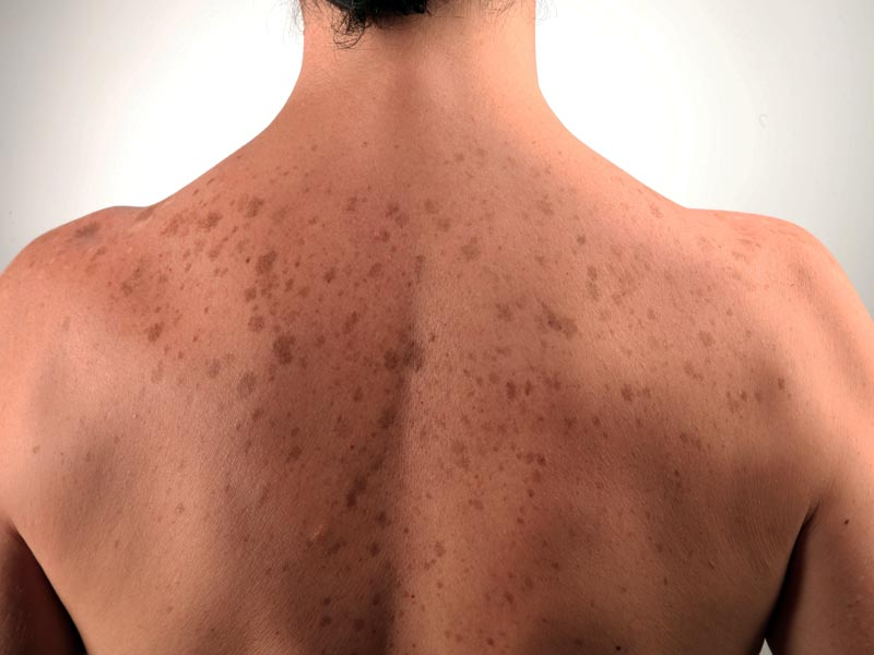 Розовые пятна на теле не болят, не чешутся: фото, что за высыпания, лечение