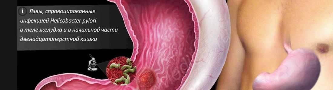 Кардиомагнил вред для желудка