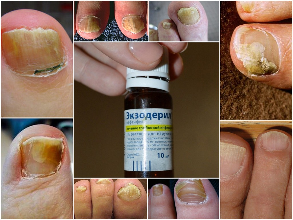 Грибок на ногах: симптомы, лечение и фото