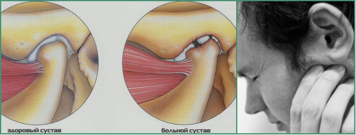 Сводит челюсть: причины неприятного симптома. если сводит челюсть, что делать в первую очередь, когда начинать лечение - автор екатерина данилова - журнал женское мнение