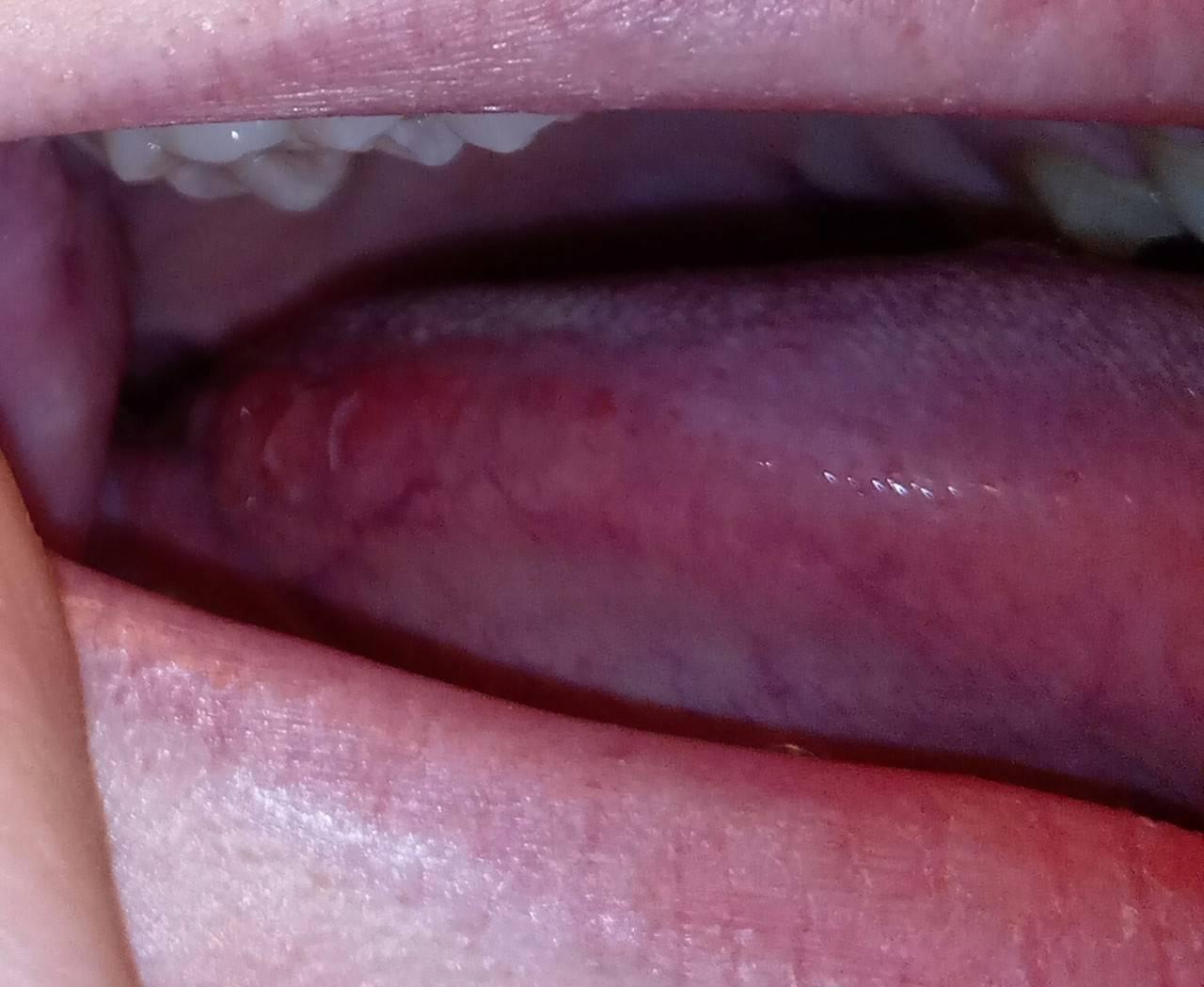 На корне языка ближе к горлу красные пупырышки и прыщи: что это, причины появления бугорков, лечение шишек