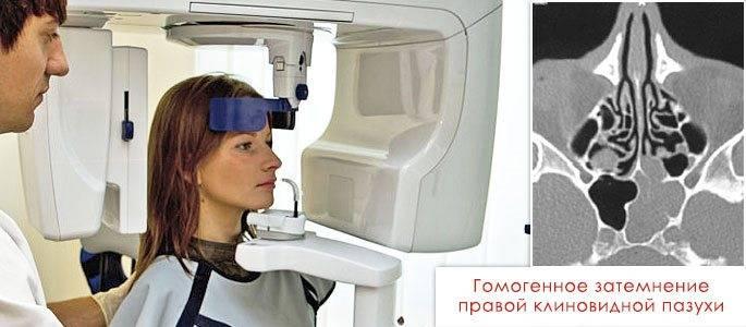 Кт носовых пазух: что показывает? полное описание процедуры. цена
