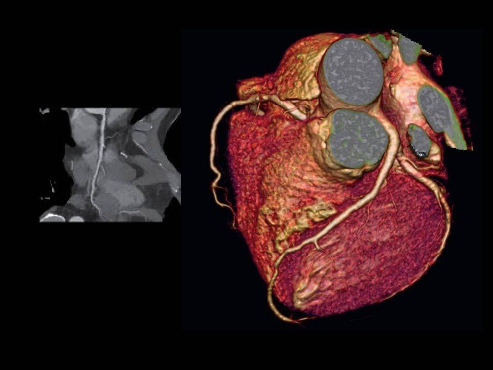 Мскт коронарных артерий:показания,противопоказания,преимущства