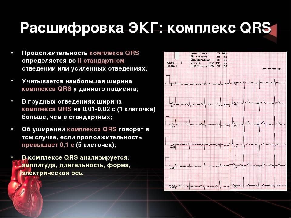 Расшифровка кардиограммы у детей и взрослых: общие принципы, чтение результатов, пример расшифровки