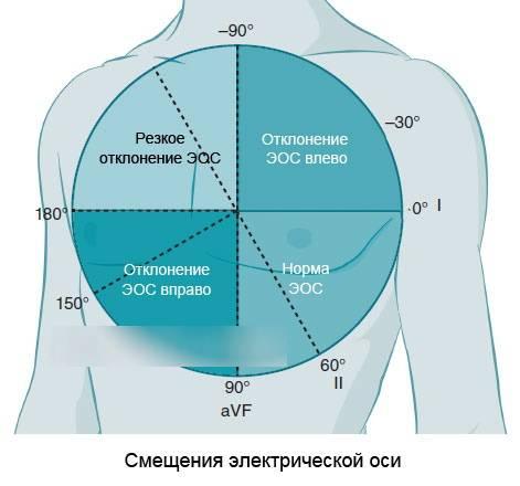 Горизонтальная эос в кардиограмме - гипертоник.ру