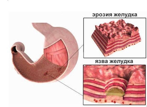 Болит желудок от кардиомагнила