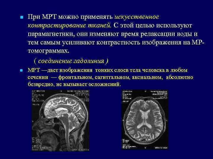 Как проводится мрт головного мозга с контрастом