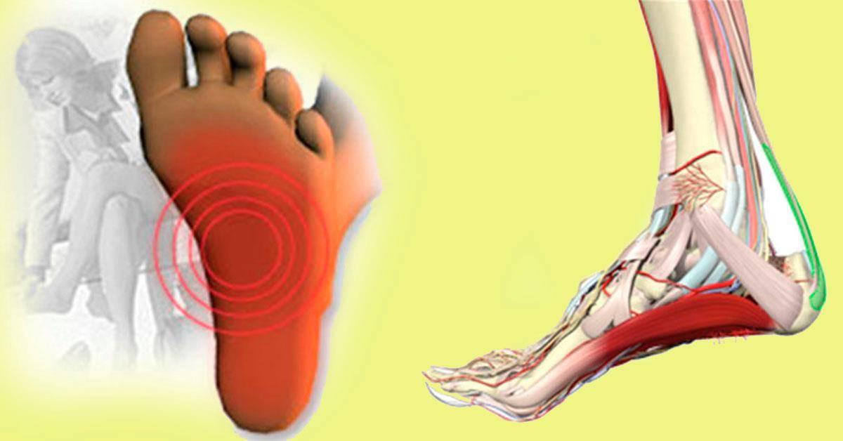 Боль в пятке при ходьбе, наступании, по утрам, после сна: причины, лечение, народные средства