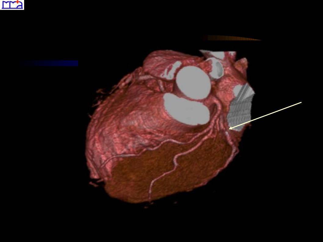 Кт сердца: виды и особенности метода, показания, противопоказания