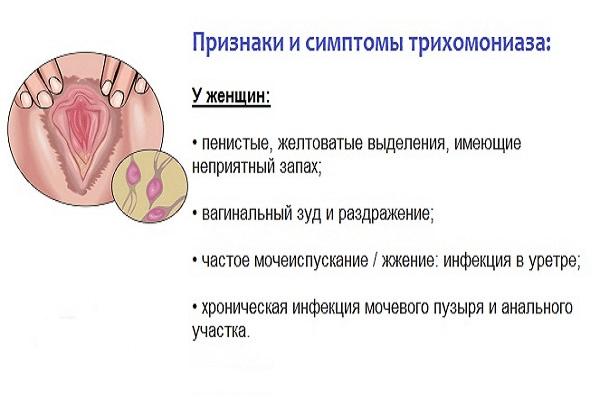 Симптомы трихомониаза у женщин: причины, лечение, профилактика