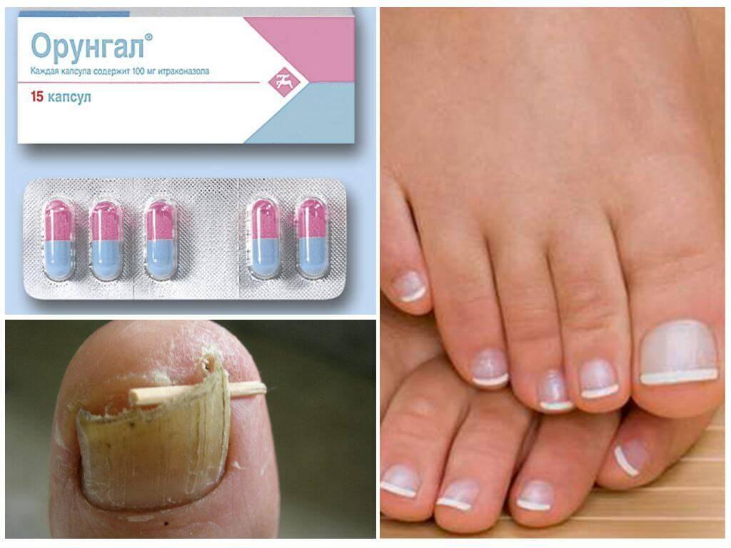 Как выглядит грибок ногтей на ногах. чем лечить, эффект